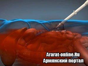 Ветеринария - остановить кровотечение